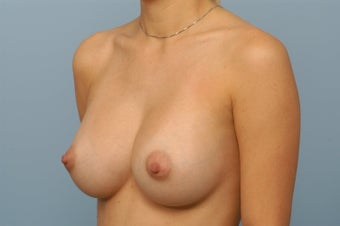 36c boob size
