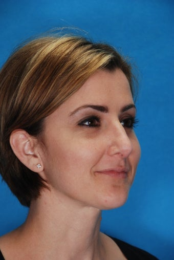 Rhinoplasty (nose job, nasal surgery) 346935