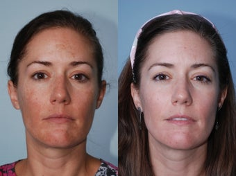 Cosmion Mask and M2 Treatment of Melasma before 353872