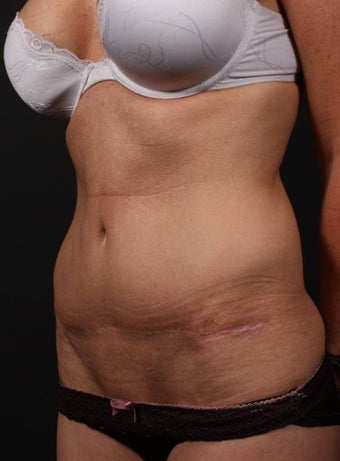 Full tummy tuck revision 356434