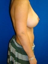 Revision Breast Surgery 356590