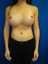 Revision Breast Surgery 356593