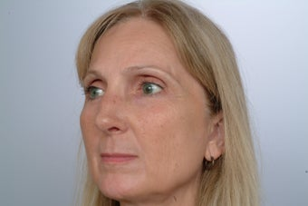Revision Rhinoplasty 358580