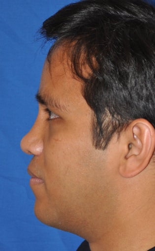 Rhinoplasty-Asian 370618