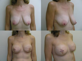Bilateral Breast Reconstruction with Implants and Allograft 387559