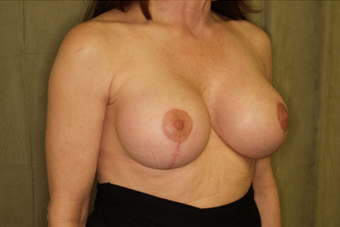 Breast augmentation with breast lift 391344