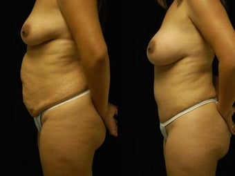 Tummy Tuck and Breast Augmentation 392095