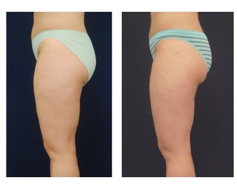 Liposuction 392328