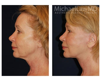 Facial Rejuvenation 395138