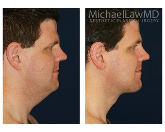 Lower Face and Neck Lift 395848