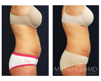 Abdominoplasty - Tummy Tuck 396097