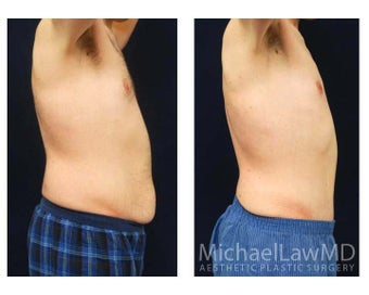 Abdominoplasty - Tummy Tuck 396130