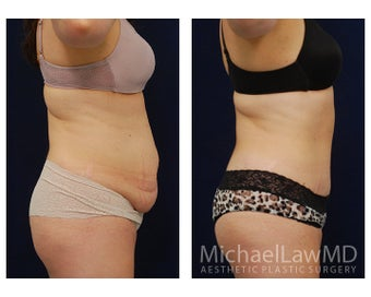 Abdominoplasty - Tummy Tuck 396135