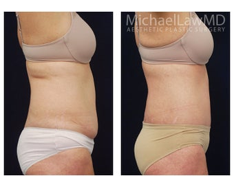 Liposuction 397124