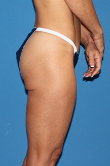 Del Mar butt tuck 398837