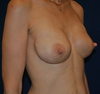 Breast Reconstruction 398870