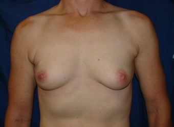 Breast Reconstruction  before 221548