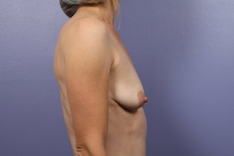 Breast Lift / Breast Augmentation before 291169