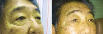 Cosmetic eyelid surgery before 128409