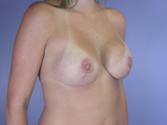 Breast Lift / Breast Augmentation   after 291016