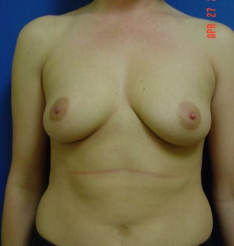 Breast Augmentation before 347972