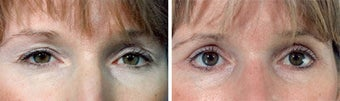 Blepharoplasty before 643239