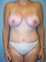Tummy Tuck (Abdominoplasty), Breast Augmentation, Mommy Makeover after 394820