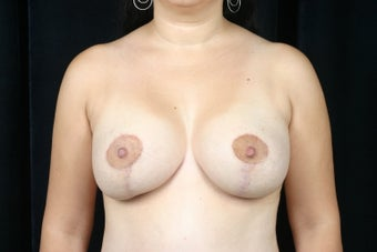 Breast Lift / Breast Augmentation  after 291003
