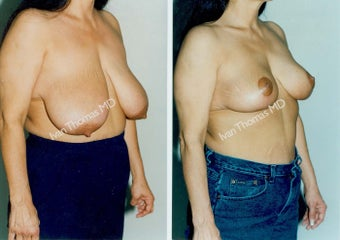 Breast Reduction before 243733