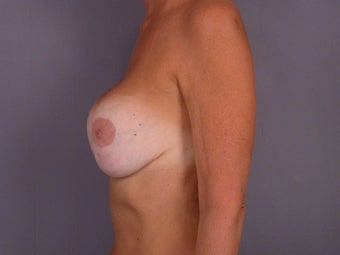Breast Revision Surgery  before 306999