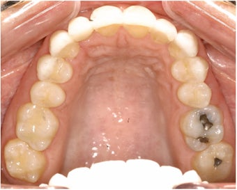 Pre Prosthetic Invisalign after 113950