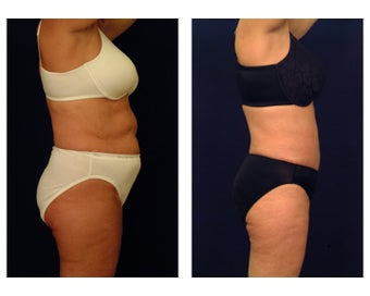 Liposuction 397056