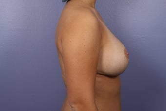 Breast Lift after 302535
