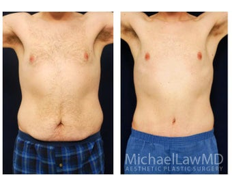 Abdominoplasty - Tummy Tuck before 396130