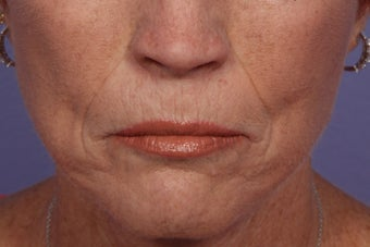 Radiesse and Juvederm - Smile lines before 309227