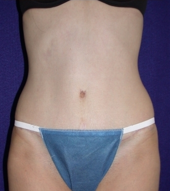 Tummy Tuck (abdominoplasty) after 208475