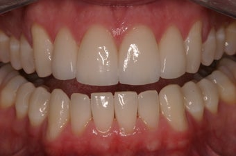 Porcelain Crowns  after 332541
