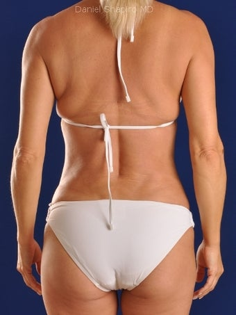 Vaser Hi-Def Liposuction of abdomen, chest, back and flanks after 422714