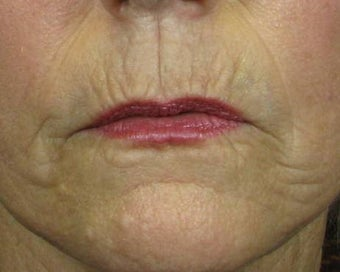 Ridding Lip Lines & Wrinkles with C02 Laser before 628481