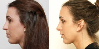 Septoplasty with rhinoplasty 619694