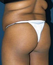 Brazilian Butt Lift (Butt Augmentation) before 242792