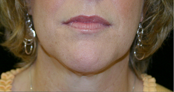 neck liposuction after 238511