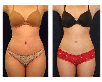 Liposuction before 286745