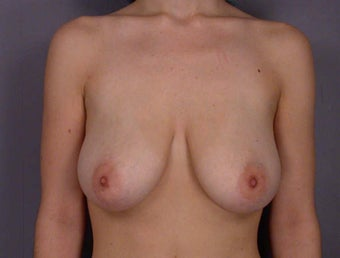 Breast Lift before 285360