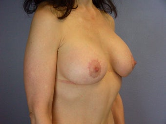 Breast Lift / Breast Augmentation after 291161
