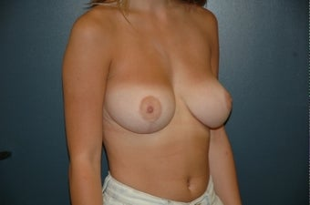 Breast reduction 361104