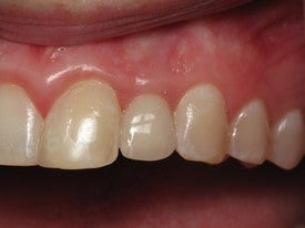 Dental Implant for Missing Lateral Incisor after 504324