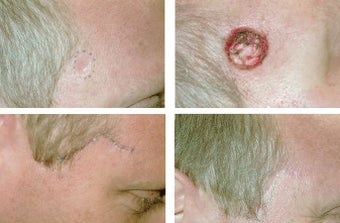 MOHS Skin Cancer Surgery before 369212