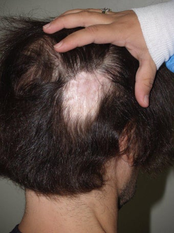 Hair Transplant to Prior Scar before 331296