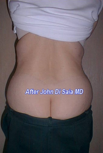 Butt Lift Years Following Tummy Tuck after 335551